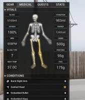 Screenshot2020-05-18 Dead Matter is Looking Better Every Da[...].png
